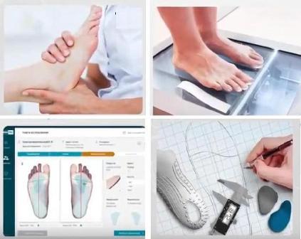 Ортопедические стельки, индивидуальное изготовление