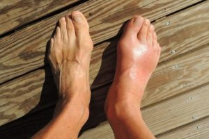 лечение и профилактика халюкс вальгус